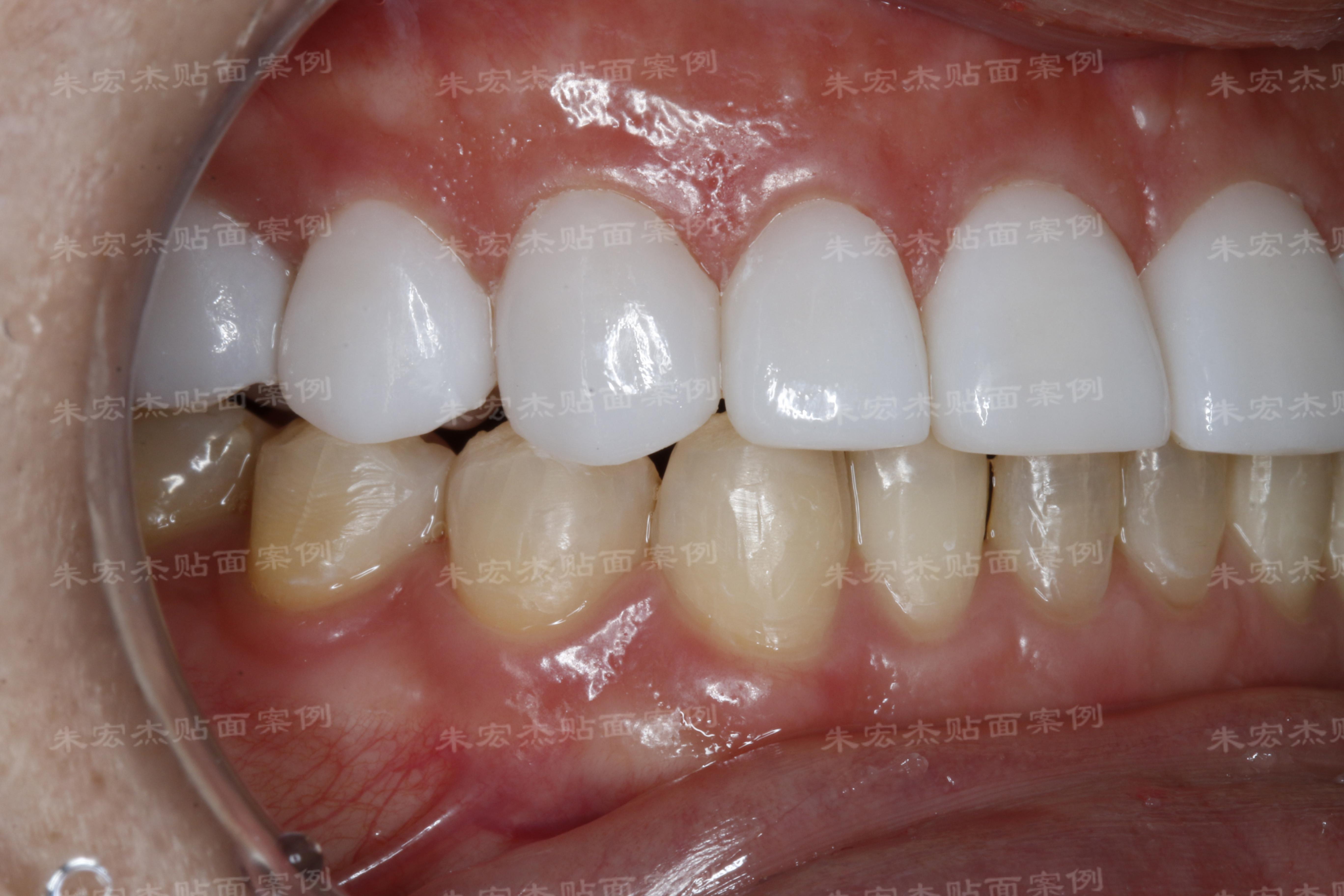 朱宏杰院长告诉您做了牙齿贴面后该如何保养