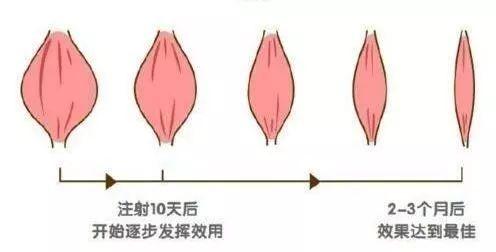 腹腔注射的原理_小鼠腹腔注射