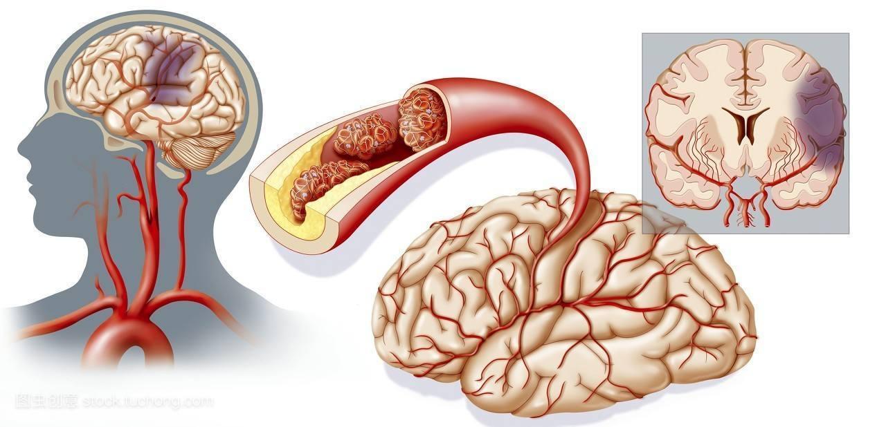 脑血栓的原理_知识│脑梗死 脑血栓及脑出血的区别