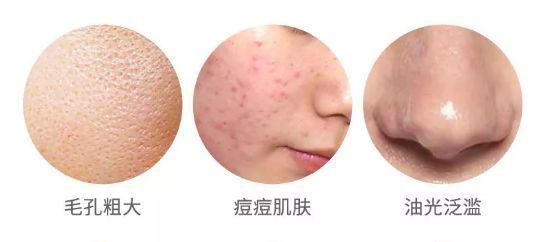 脸上螨虫超级多 难怪皮肤差 每天用它,还你干净脸