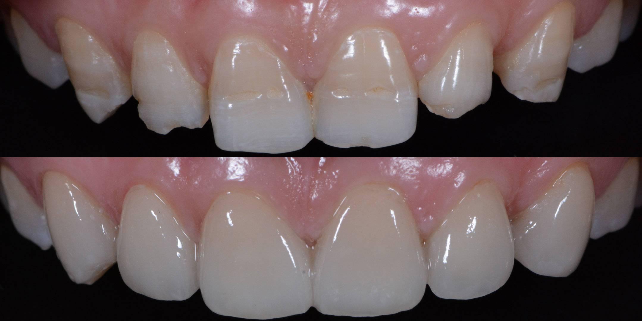 牙齿贴面护理小贴士,张志强口腔诊所