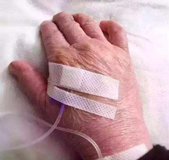 静脉输液,护士竟然倒着扎 逆行穿刺真可行