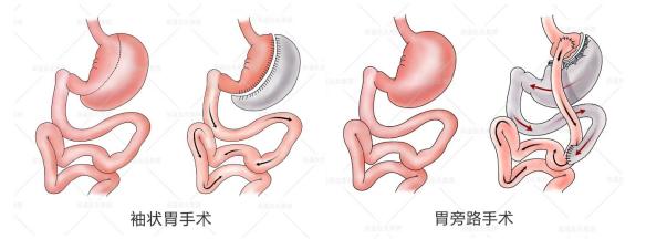 微创缩胃减肥手术价格图片