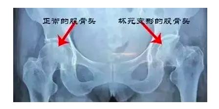 """全球首例!""""3D打印+仿生""""钽金属多孔股骨头支架植入人体"""