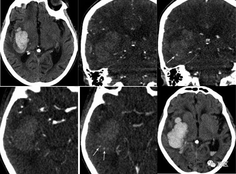 CT图像中脑出血血肿扩大的十个征象 下