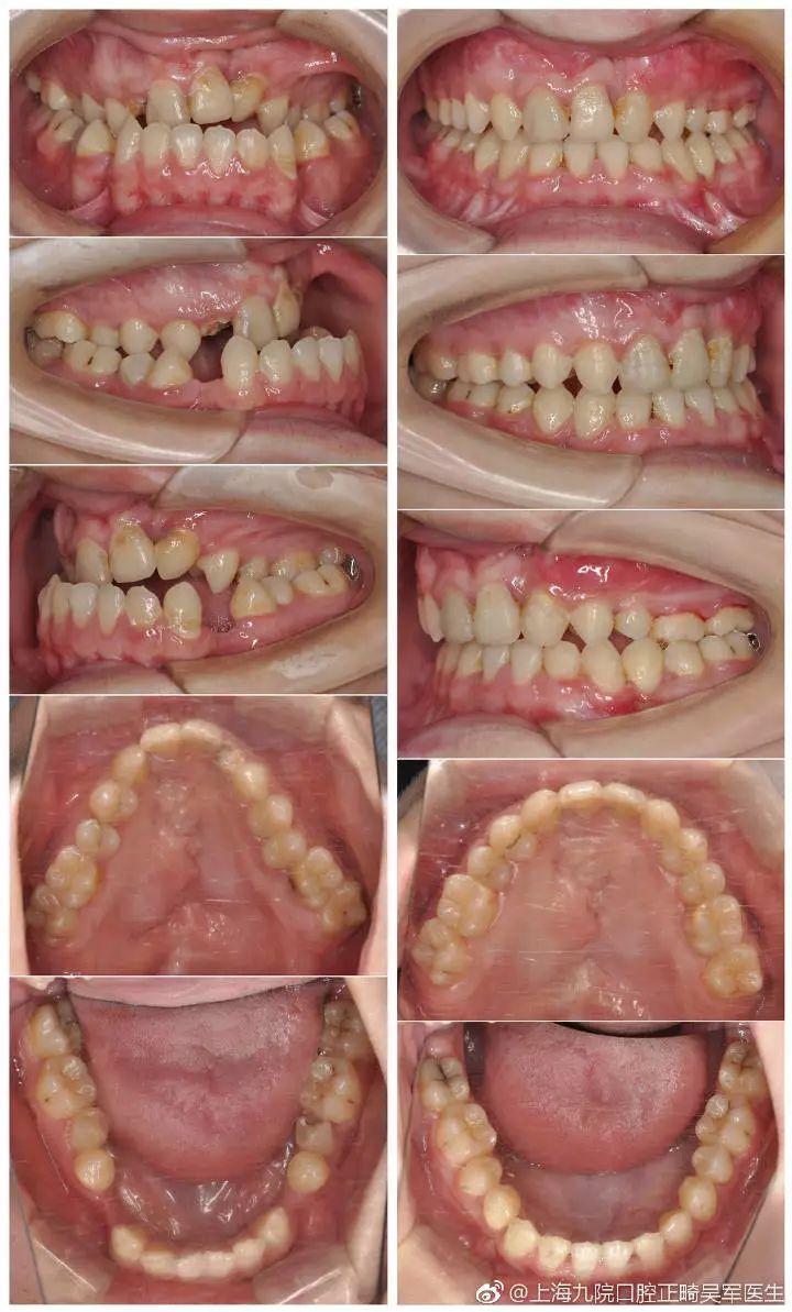 上海较好的牙科医院 上海牙齿矫正最好的医院 上海宏康口腔科