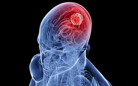 【疑问医答】胶质瘤能治愈吗?手术预后如何?