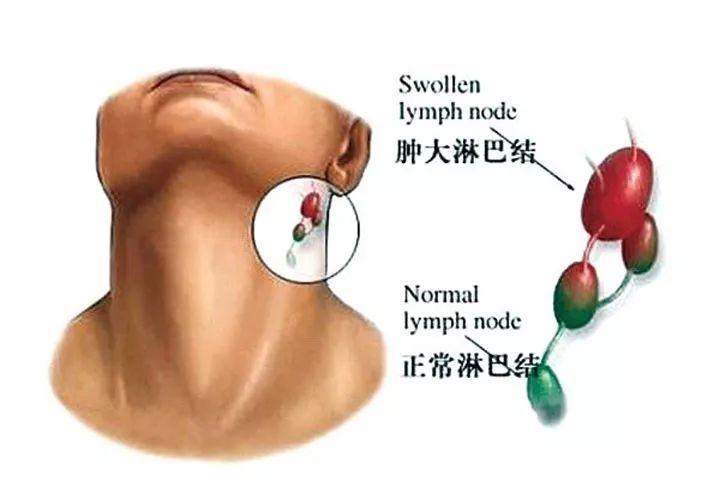 【医生说】体检发现淋巴结肿大,到底是几个意思?