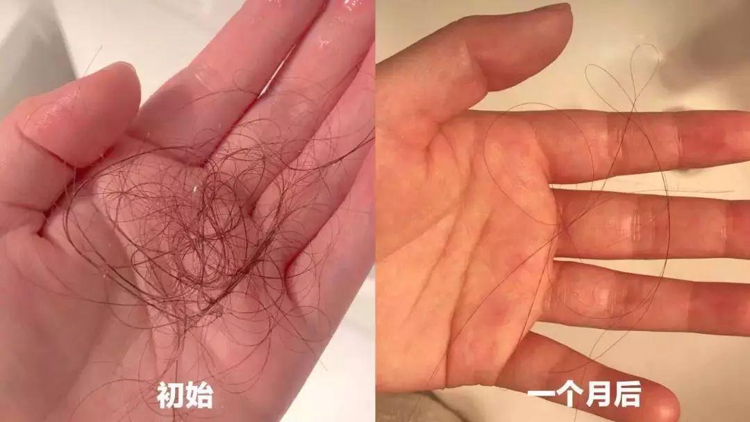 洗完头再梳头发, 发现掉发只有30根左右了!图片
