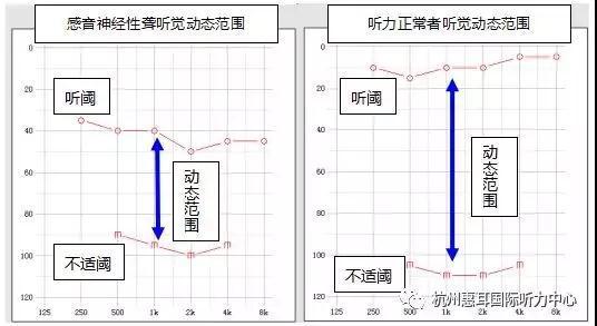 淮南龙湖路惠耳听力助听器验配中心:案例分析 揭秘神奇的听觉不舒适阈(UCL)