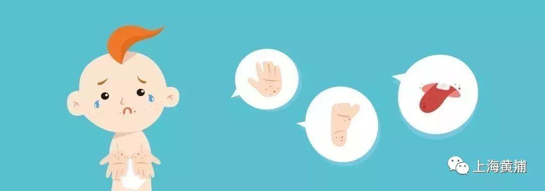 市疾控中心提醒:手足口病进入高发季,注意防治!