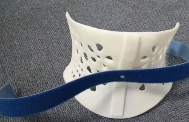 3D打印矫形器的优势特点有哪些