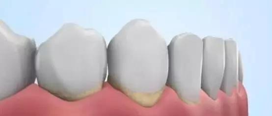 知道自己的牙结石是怎样形成的吗? (图2)
