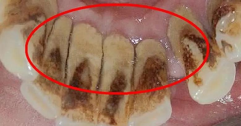 知道自己的牙结石是怎样形成的吗? (图3)