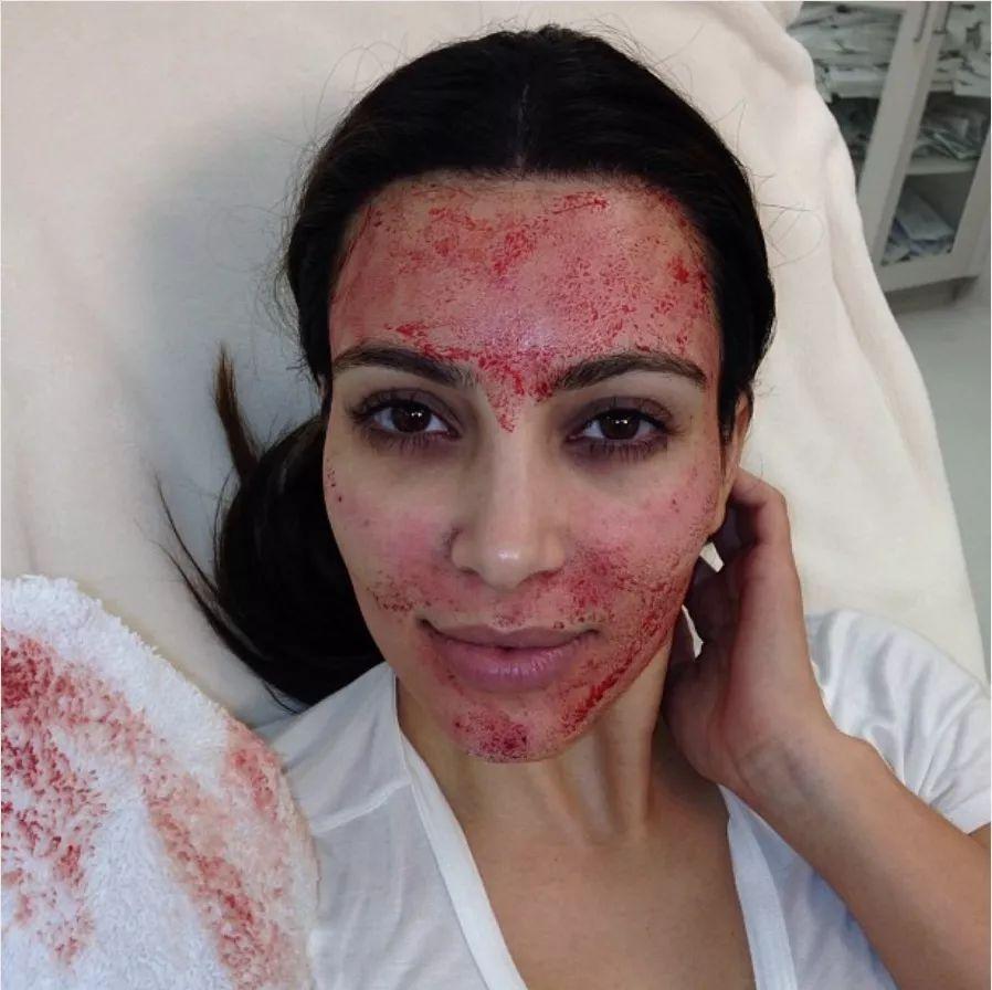 """因做美容而染上艾滋病毒,""""吸血鬼面部护理""""真要人命!(图3)"""