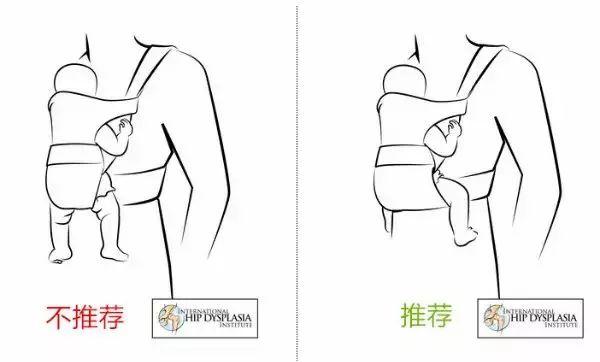 宝宝膝关节发育不好