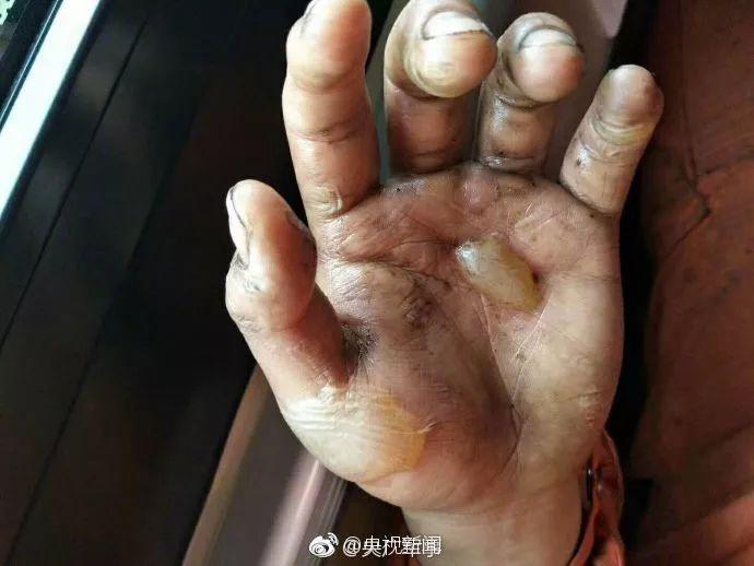 看完这样的双手,再铁石心肠的人都哭了……
