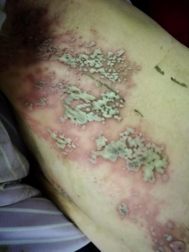 带状疱疹后遗神经痛有什么治疗方法