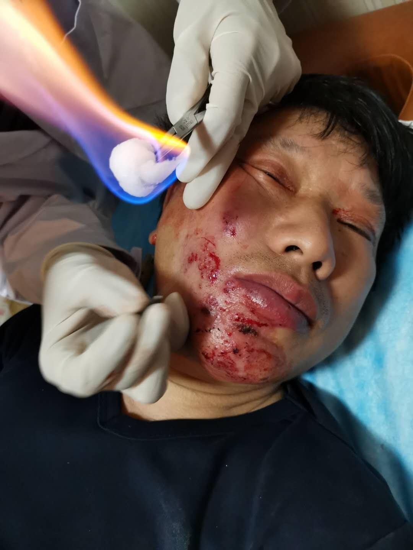 许柳田医师的带状疱疹后遗神经痛治疗绝密
