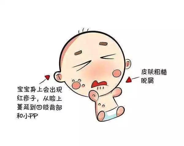 性哎卡通_湿疹属于特异性皮炎,是一种慢性,长期,反复发作的皮肤表现.