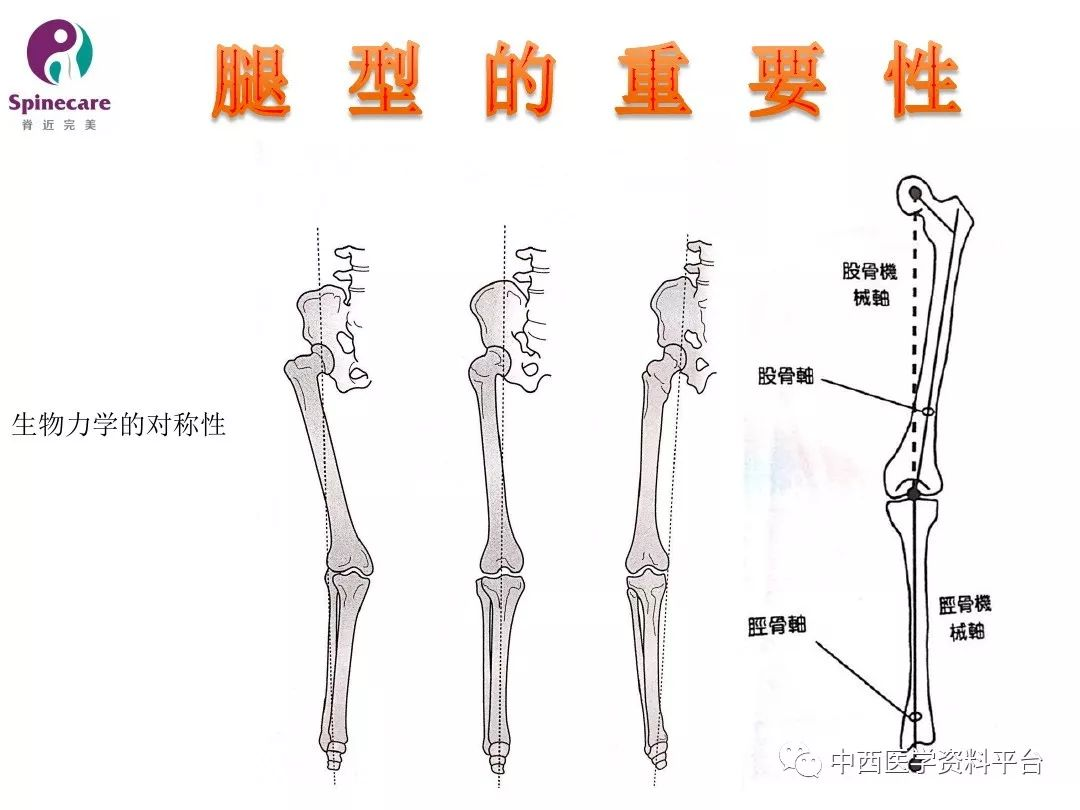 x型腿纠正支架是什么原理_血管支架是什么样子
