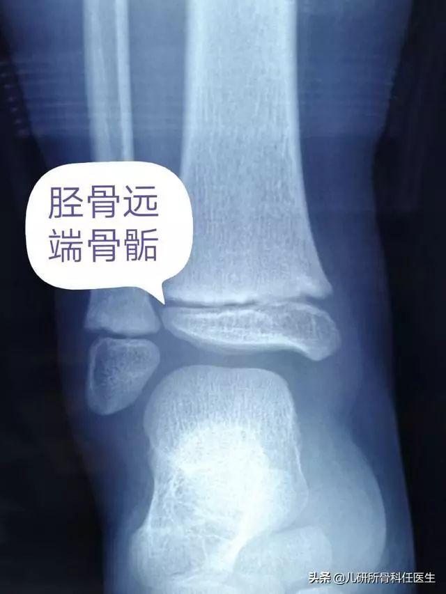 【儿研所儿医说】孩子长个的绊脚石,腿疼外伤都不可轻视,家长看完绕过这些坑