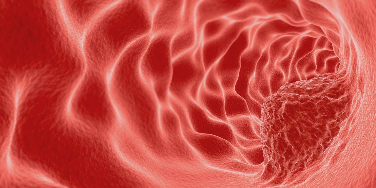 小胃病癌变前有3大征兆!第3个征兆出现时,迟了
