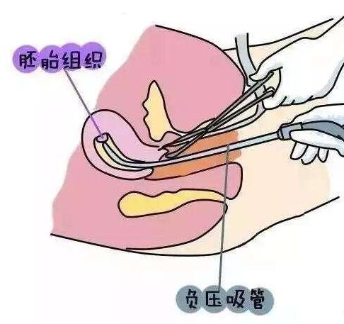 意外怀孕不想要怎么办?小心!人流清宫手术可能会导致不孕!
