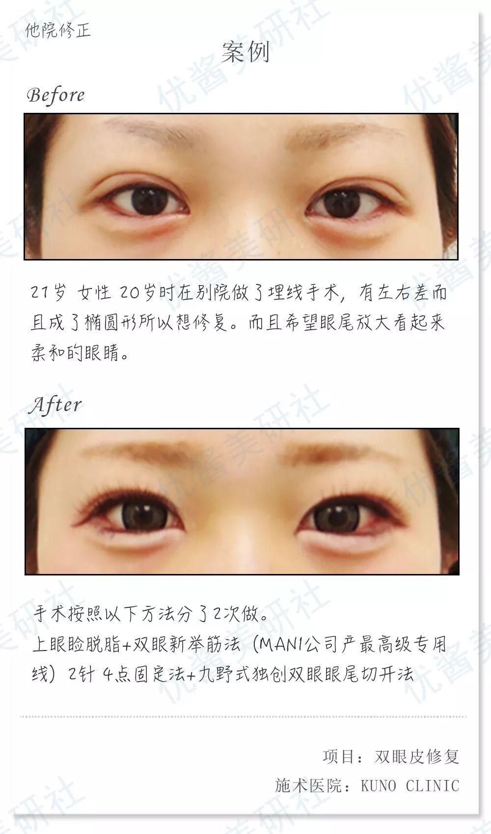 什么是眼睑下垂?如何治疗眼睑下垂?-手机名医汇