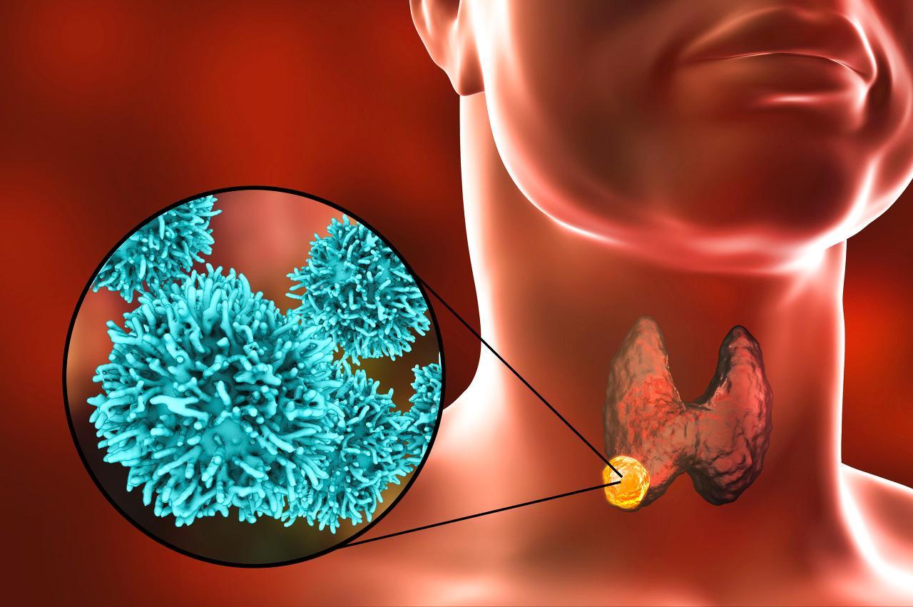 发现甲状腺微小癌直接切除?多此一举!随访并不增加复发率!