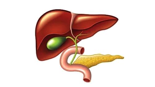 原因 胆石 症