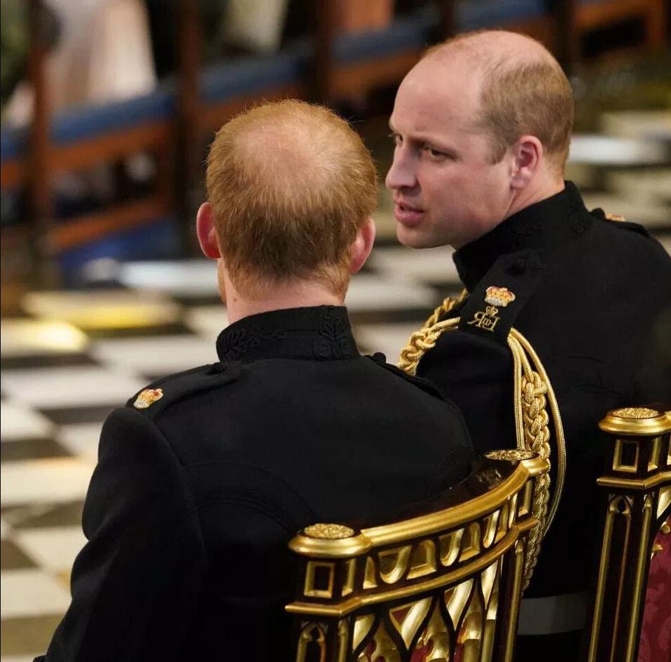 原创 哈里王子的秃顶面积翻番 专家呼吁:别像威廉王子难以补救!