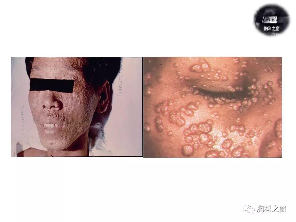 AIDS合并马尔尼菲篮状菌病