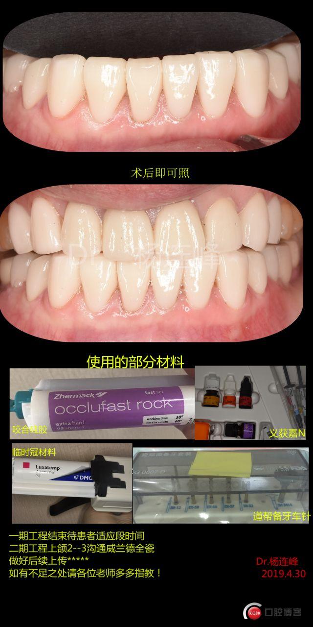 四环素牙瓷贴面1例