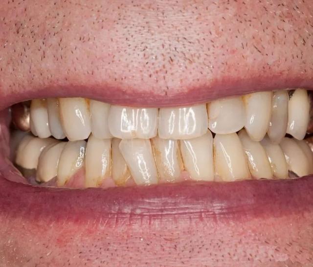 孩子不愛刷牙?把臟牙齒放大1000倍的圖片給他們看,我就不信他不刷牙!