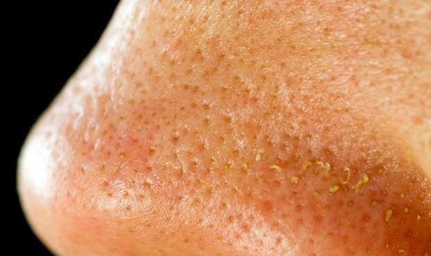 脸上螨虫成窝,只要一植物,只需一个小方法,螨虫统统死光光 毛孔