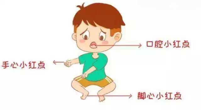 新罗区疾控中心提醒:天气转暖,警惕婴幼儿感染手足口病!