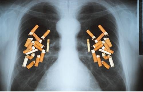 烟瘾再大,这4个时间段也别抽了,小心被肺癌锁定,别视若无睹