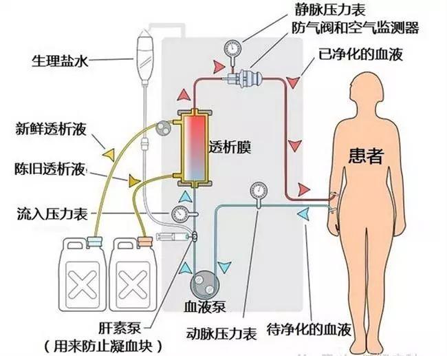 针久的原理_103电针灸治疗仪原理图