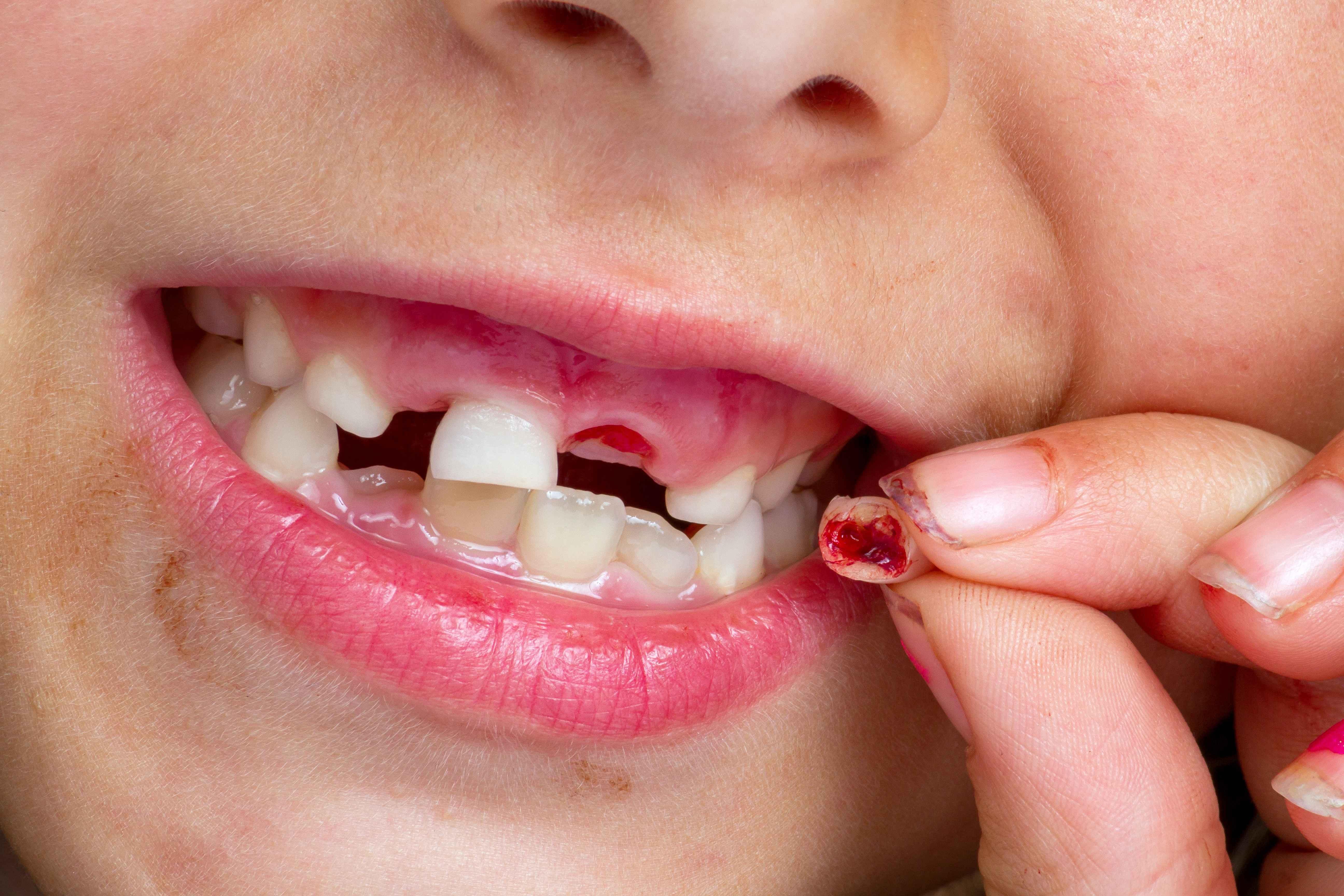 宝宝长牙发烧要注意了,长牙顺序及时间你得搞清楚