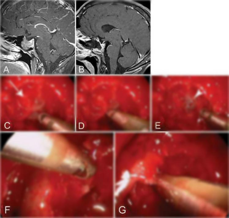 病例7.纤维性垂体巨腺瘤.