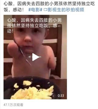 长沙夏令营:父母竟如此狠心,让一个痛失四肢的男孩......