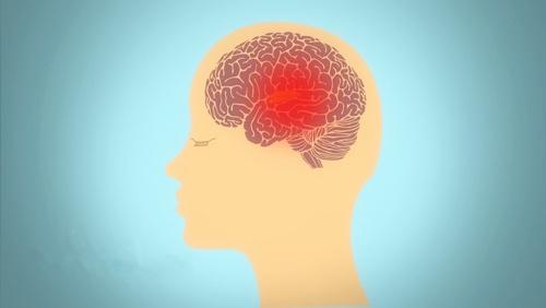 为什么有些脑肿瘤患者术后需要放化疗有的不需要呢?