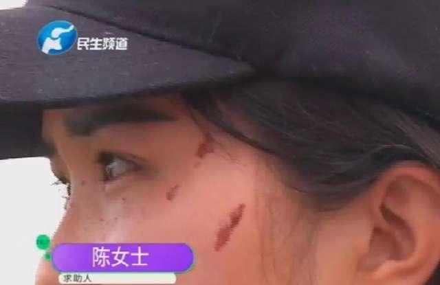 女老师被家长抓得满脸是伤,老师哭着求助媒体,校长避而不见!