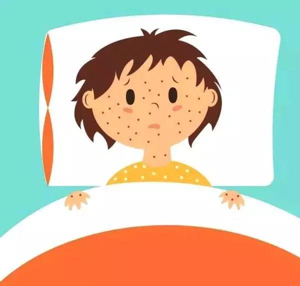 又到水痘季节性高峰期,做好这几点巧预防