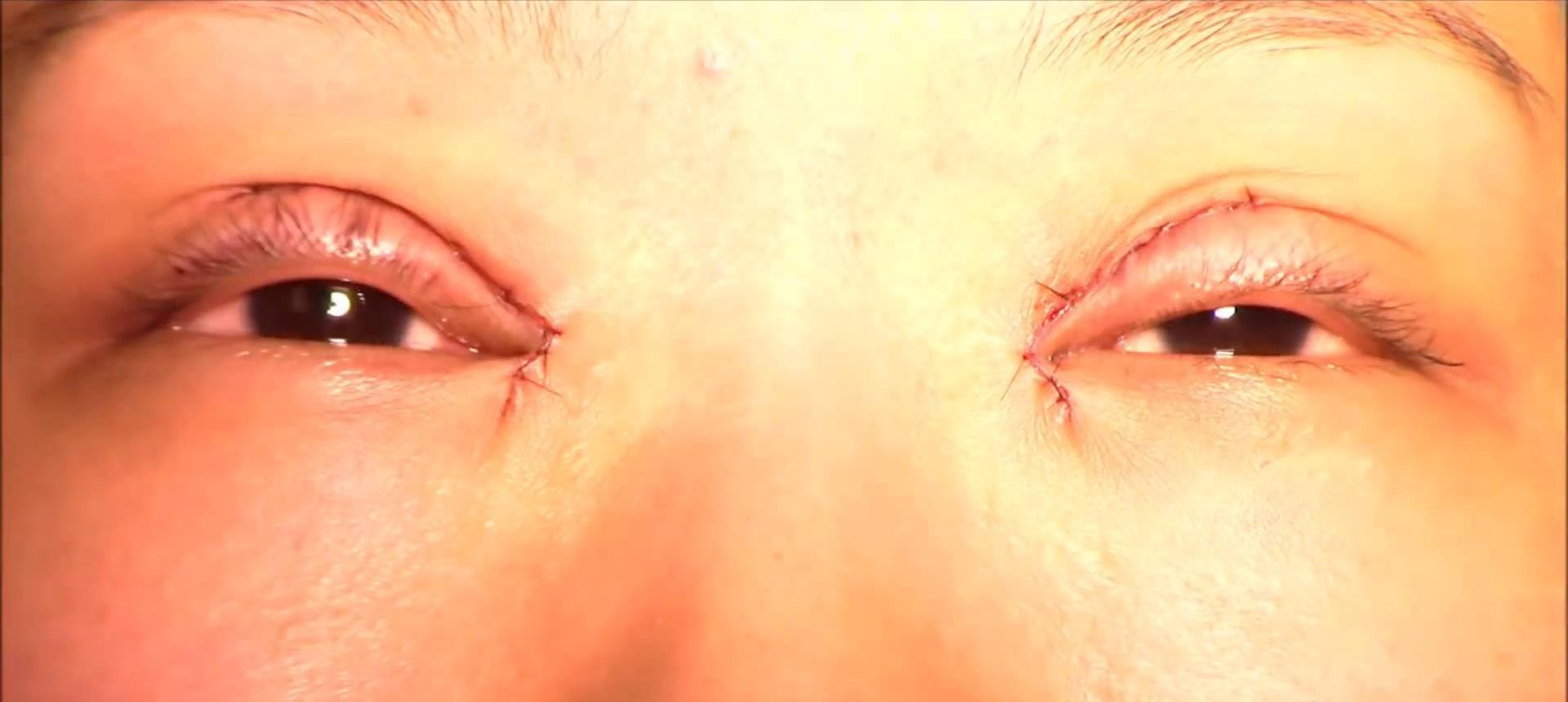 眼睛麦粒肿图片