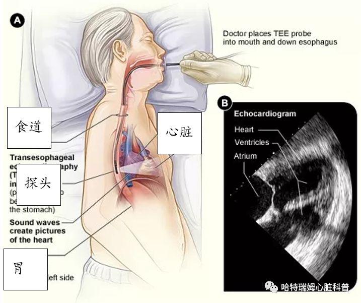 """房颤手术部位在心脏    术后为啥要吃""""护胃药""""?"""