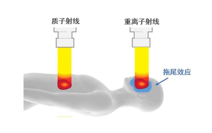 质子治疗和重离子治疗技术有什么区别?插图8