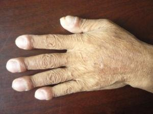 肺部有癌,手指先知!医生:当手有这一异常,可能是癌症警示信号