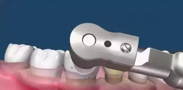 洗牙什么原理_洗牙用的什么工具图片